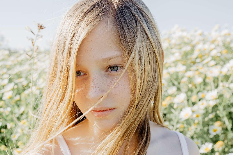 一位女孩臉上長滿了各種斑點,像是肝斑、曬斑、雀斑等,這些都與黑色素細胞有很大關係