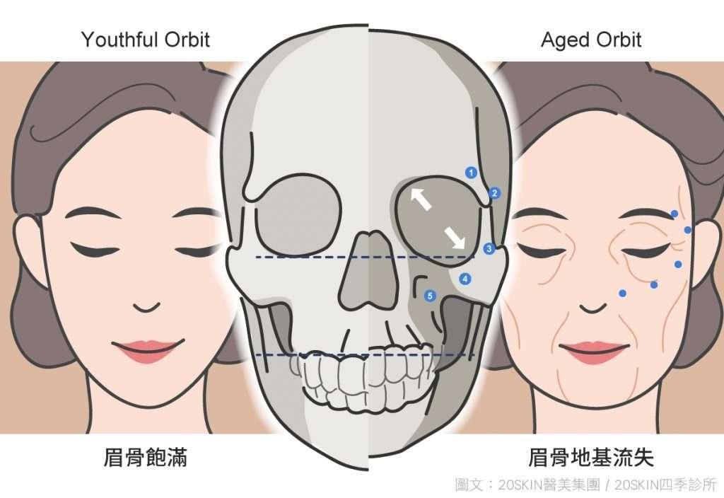 年輕眉骨飽滿和老化眉骨地基流失