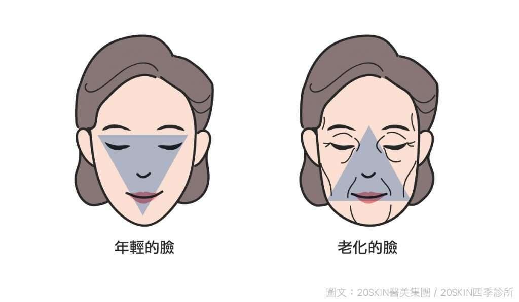 年輕的臉和老化的臉,鬆弛老化會讓臉型呈現倒三角形。