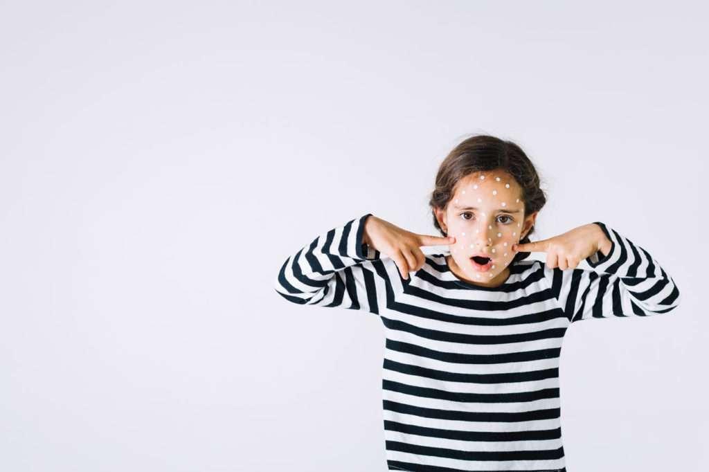 口服A酸如何治療痘痘肌?會有哪些副作用