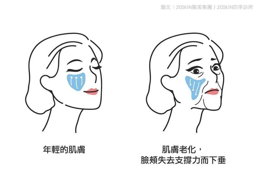 老化造成皮膚老化、臉頰失去支撐力而下垂
