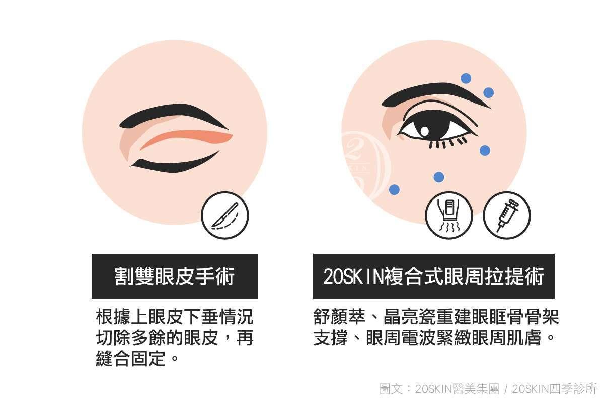 20skin複合式眼周拉提術