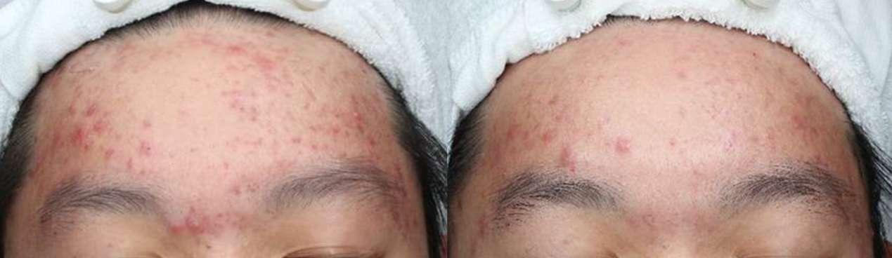 利用ALA紅光療程進行3次治療,痘痘發炎的面積和情況有明顯改善。