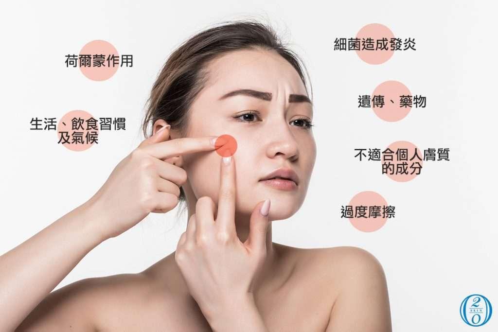 造成臉部容易出油、長出粉刺痘痘的原因