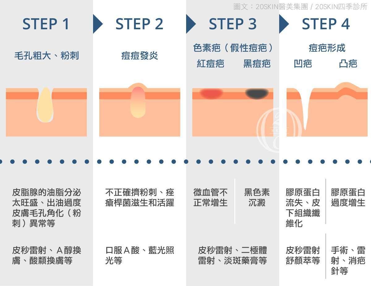 痘疤形成的過程和原因