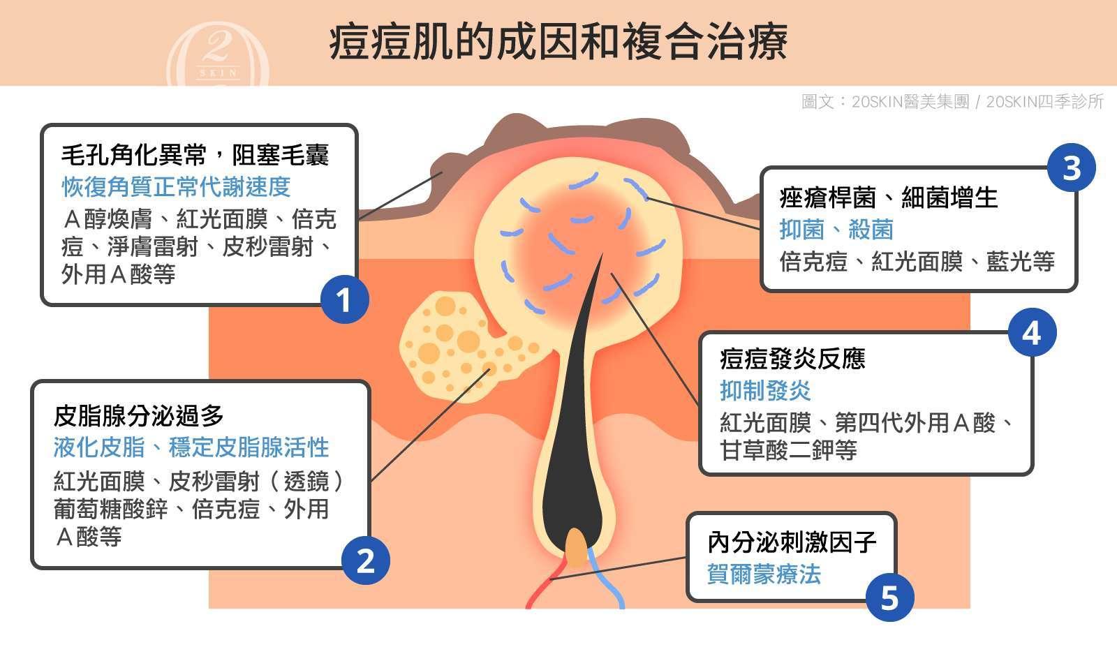 痘痘肌的成因和複合治療