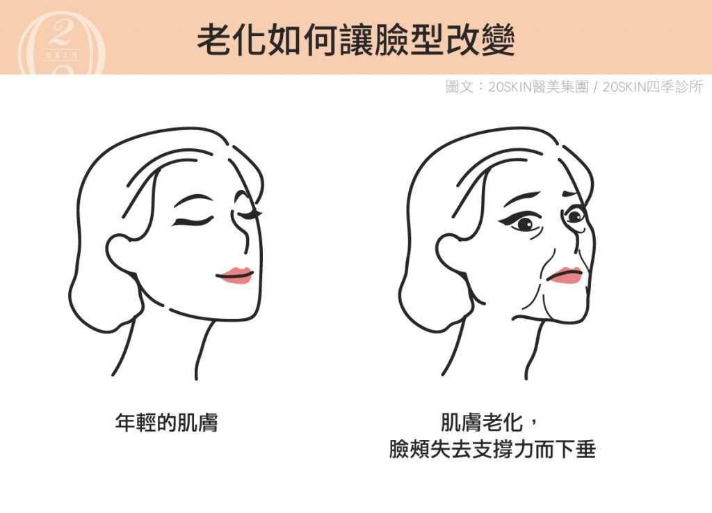 老化如何讓臉型改變