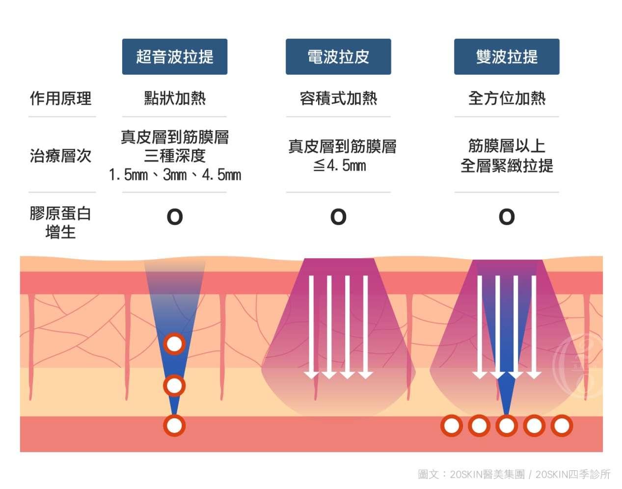 電波拉皮、超音波拉皮和電音雙波拉皮的複合運用比較表