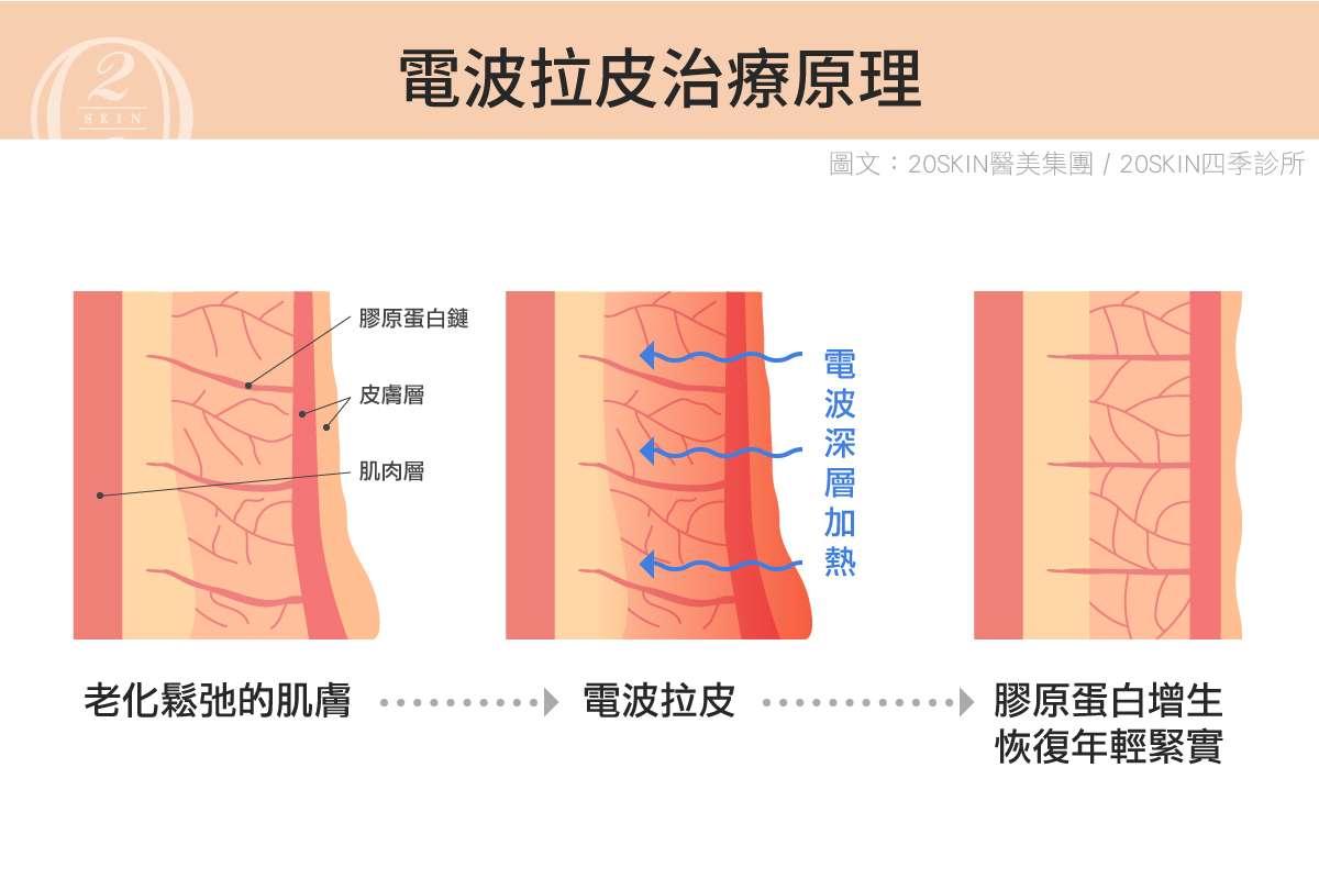 電波拉皮的作用原理,可以加熱並緊緻拉提肌膚、刺激膠原蛋白新生