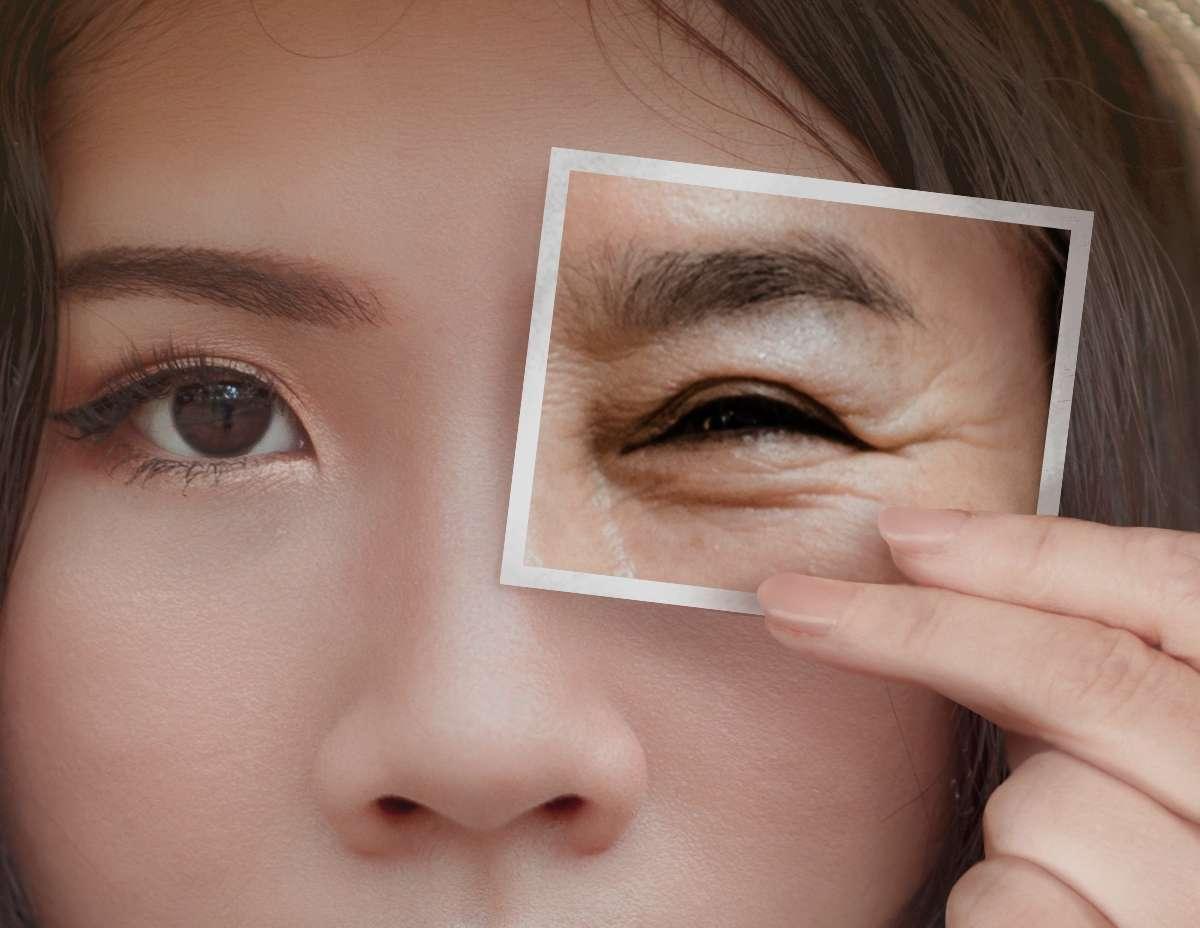 眼周肌膚逐漸失去彈性而鬆弛下垂