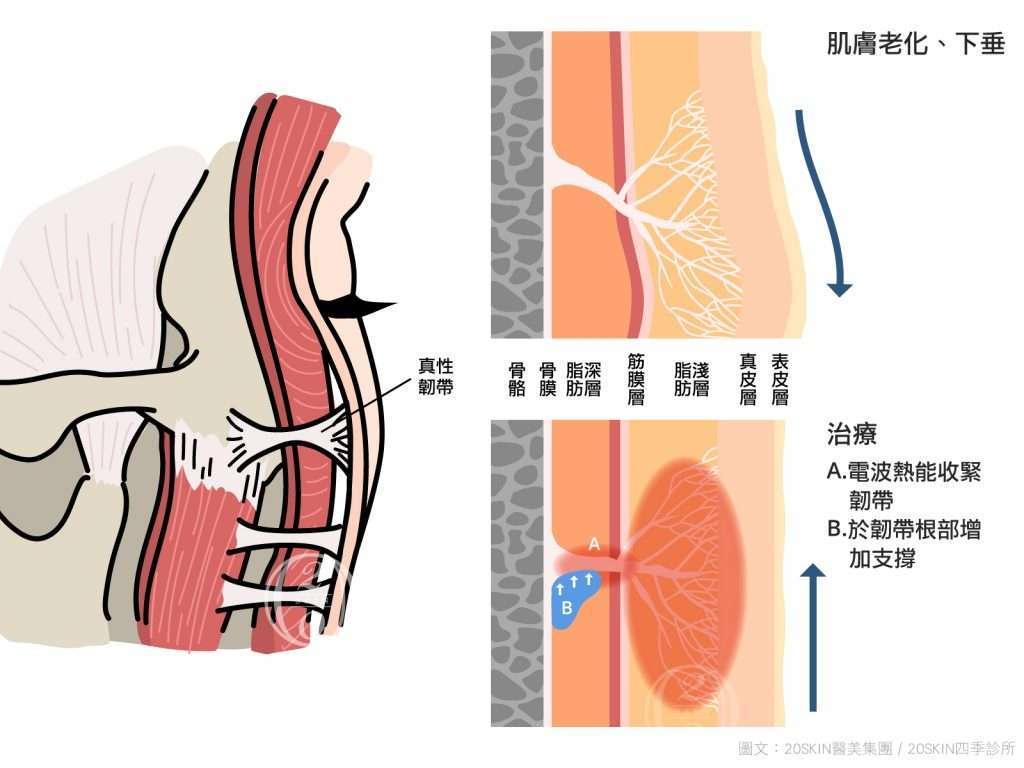 真性韌帶往下掉,必須運用電波拉皮或注射填充來改善。