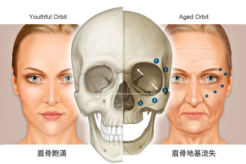 老化流失的眉骨比較