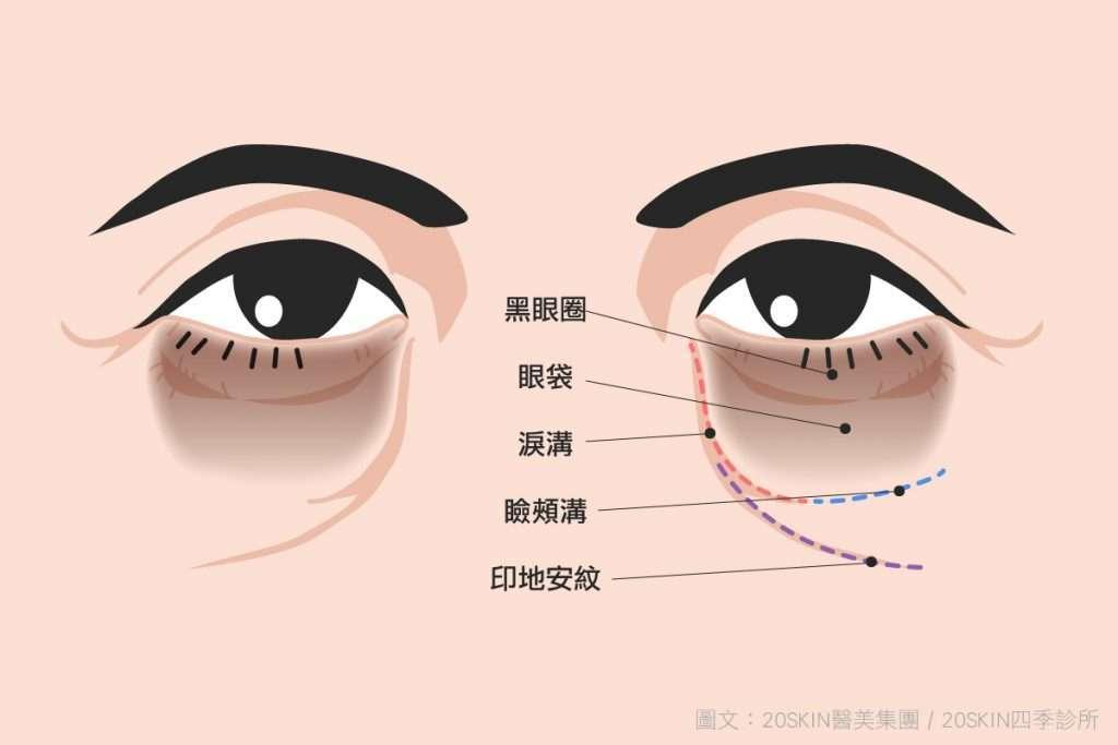 如何辨識眼袋、淚溝、黑眼圈